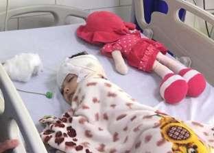 القبض على أحد المتهمين في نهش كلب شرس لرأس طفلة بالدقهلية