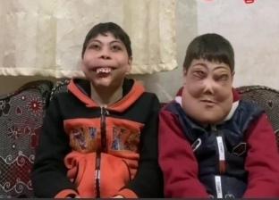 مرض نادر يصيب شقيقين بتضخم في الوجه: بيتقال لهم شكلكم مرعب