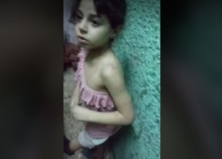 الطفلة «حنين» تشكو قسوة والدتها: بتضربني بالسلك على جسمي «فيديو»