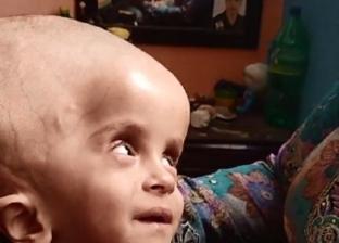 معاناة الرضيع مازن.. مياه على المخ سببت تضخم رأسه وفشلت محاولات علاجه