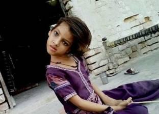 بالصور| حالة نادرة لطفلة تحمل رأسا بزاوية 180 درجة على جانب جسدها