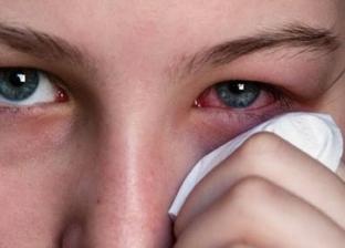3 أعراض جديدة تظهر على مصابي فيروس كورونا المستجد: تصيب العين