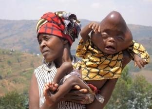 والده أمر بقتله.. طفل يعاني التنمر بسبب تشوهات خلقية: «سموه الشيطان»