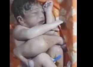 بالفيديو| طفل يولد بـ4 سيقان و3 أذرع..ووالديه حاولا التخلص منه