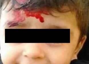 """وفاة الطفلة """"ملك"""" بعد أسبوع من ضربها.. وتوجيه تهمة القتل العمد لأمها"""