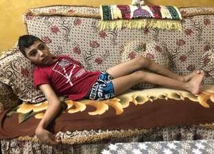 ضمور المخ يدمر حياة الطفل «محمد».. وأسرته تصرخ: «محتاجين علاج ومعاش»