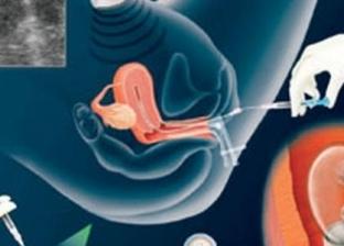 """""""رعاية الصحة الإنجابية"""": ثورة في بحوث وتحاليل تأخر الإنجاب بمصر"""