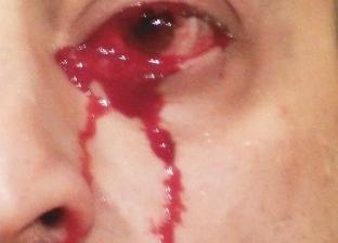 """حالة غريبة.. إيطالي """"يبكي بدل الدموع دم"""""""