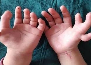 ولادة طفلة بـ14 إصبعا