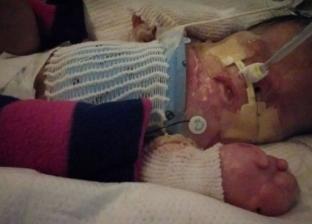 بالصور| حالة غريبة.. ولادة طفل دون جلد في أمريكا