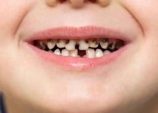 طبيب يحذر من السكريات والنشويات: تسبب تسوس الأسنان لدى الأطفال