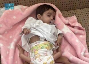 جراحة عاجلة يشارك بها 25 طبيبا لإنقاذ الطفلة «عائشة»: عندها 4 سيقان