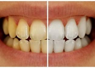 """اكتشاف مادة جديدة """"آمنة"""" لتبييض الأسنان"""