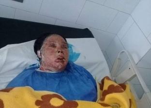 رفضت العمل كخادمة.. وفاة سيدة أشعل زوجها النيران بجسدها في السويس