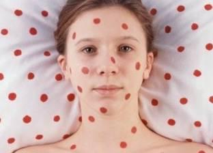 بعد تحذير منظمة الصحة العالمية.. كيف تحمي نفسك من مرض الحصبة؟