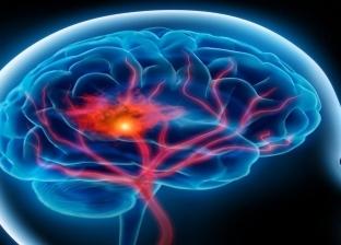 زيادة الوزن والسكري.. أسباب الإصابة بالسكتات الدماغية