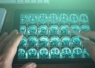 """دراسة: فيروس """"شلل الأطفال"""" أمل جديد لعلاج أورام المخ الفتاكة"""