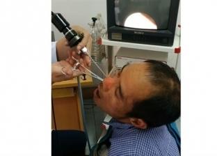 بالفيديو  شاهد ما أخرجه الطبيب من أنف فيتنامي