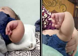 الطفل «فارس» يعاني من تشوهات عظام وأسرته تتمنى علاجه.. وُلد بعد 13 سنة