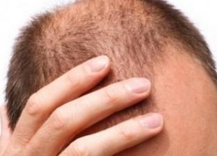 طرق بسيطة لإعادة نمو الشعر ومنع الصلع