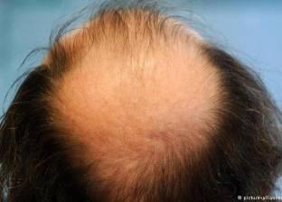 انتبه! أدوية منع تساقط الشعر قد تسبب العجز الجنسي