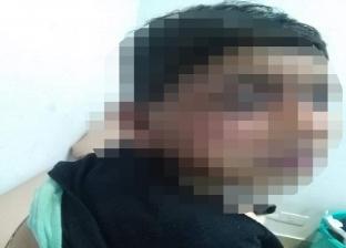 إصابة طفل بحروق إثر انفجار كابينة كهرباء في الخانكة