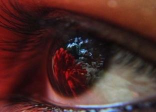 استشاري عيون: مصر تعاني من أمراض تصيب العيون وخصوصا الأطفال