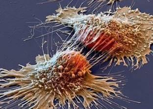 علاج جديد للحالات المتأخرة من السرطان