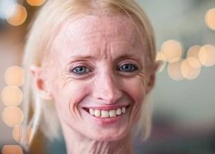 بالصور| أمريكية تبدو أكبر من عمرها بـ8 مرات.. والسبب مرض نادر