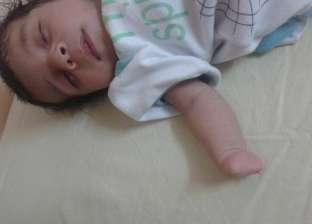بالصور| عيب خلقي يحرم الرضيع محمد من أصابعه.. ووالدته: نفسي يتعالج بره