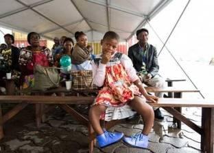 بالصور| إنقاذ طفلة من مرض نادر