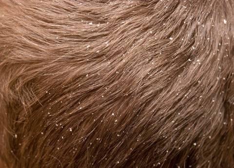 تعرف على أسهل طريقة للتخلص من قشرة الشعر