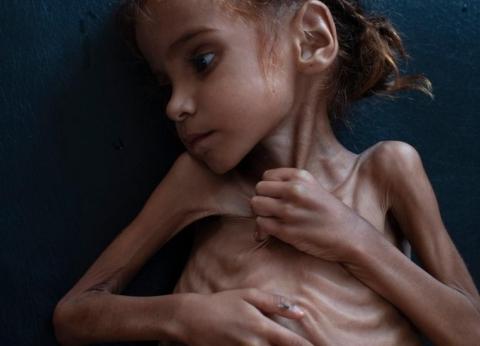 """""""يونيسيف"""": اليمن تراجع 20 عاما في 4 سنوات من الحرب"""