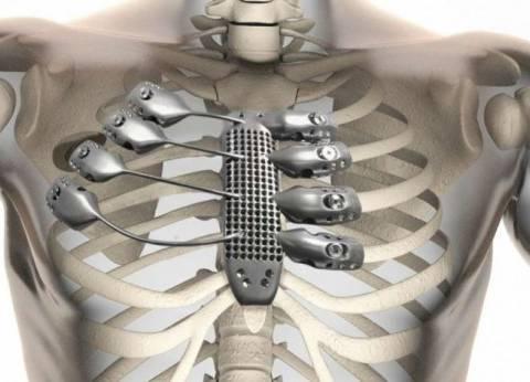 """زراعة أول قفص صدري بشري من التيتانيوم باستخدام """"طابعة ثلاثية الأبعاد"""""""