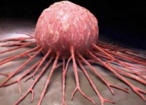 «الخبيث».. الأورام تصيب الإنسان والحيوان والنبات