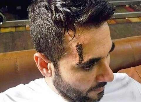 """أحمد عز للنيابة: تسجيل صحفي خاص بجريدة """"الوطن"""" يثبت تعرضي للاعتداء"""