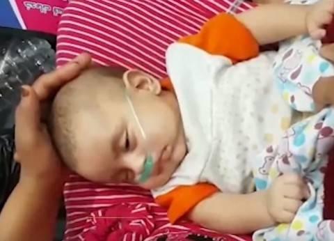 """وكيل """"صحة المنوفية"""": إحالة واقعة بتر ذراع طفلة بمستشفى شبين للنيابة"""