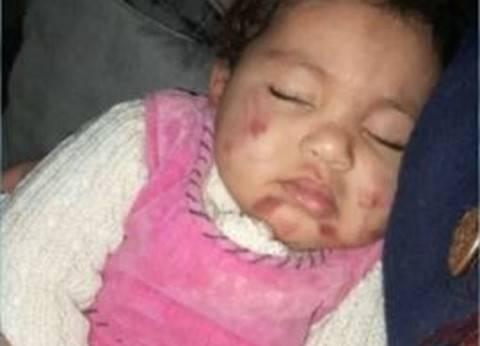"""أب يتهم حضانة في الجبل الأصفر بتعذيب ابنته: """"عاوز حق بنتي"""""""