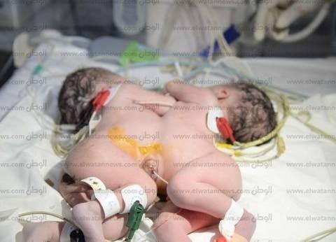 """إجراء أول عملية ولادة لتوأم ملتصق بـ""""جامعي المنصورة"""""""