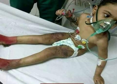 والي توجه فريق التدخل السريع لتنفيذ القانون في واقعة تعذيب الطفل يحيى