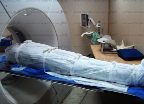 مستشفى أسوان الجامعي تكشف على 6 مومياوات فرعونية