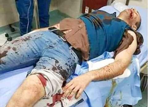 """بعد الهجوم على ضابط.. ضبط 20 كلبا من سلالات نادرة في """"مدينتي والرحاب"""""""