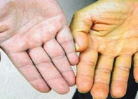 """منها """"تليف الكبد"""".. احذر اصفرار الجلد يدل على أمراض خطيرة"""