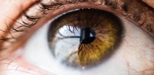 العين تكشف الزهايمر