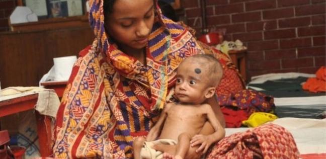 سوء التغذية يصيب 150 مليون طفل حول العالم