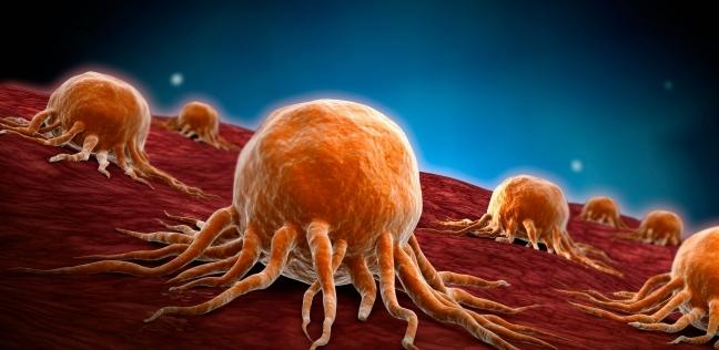 علماء يكتشفون علامة مميزة لظهور السرطان