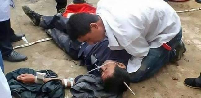 عامل ينجو من الموت بعد اختراق رمح حديدي جمجمته