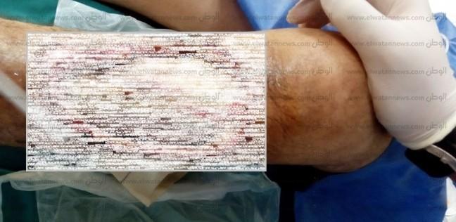 """بكتيريا """"آكلة لحوم البشر"""" تصيب ساق طفل في المنصورة"""
