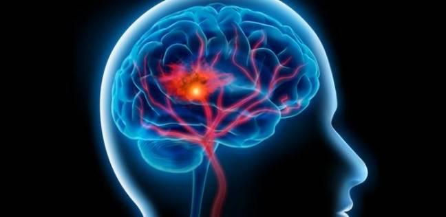 السكتة الدماغية .. أعراضها وطرق علاجها