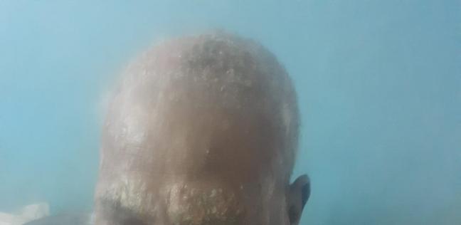 «عبدالحميد» مصاب سرطان الجلد